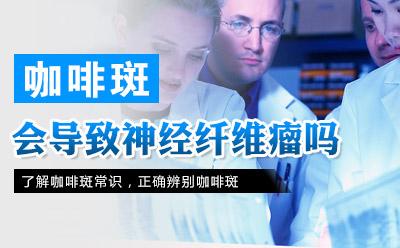 怎样去掉咖啡斑_上海治疗咖啡斑的费用